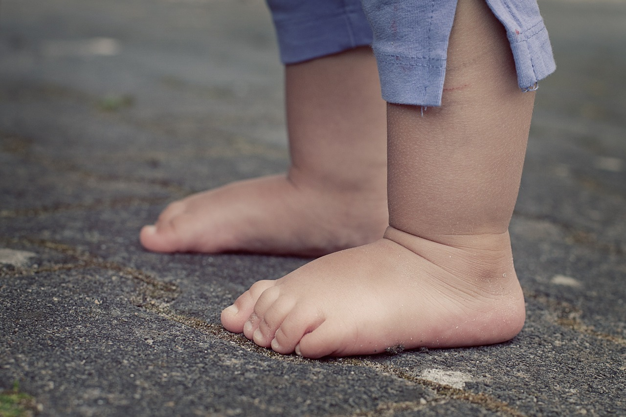 Que perjuicio representa para la salud tener el pie plano
